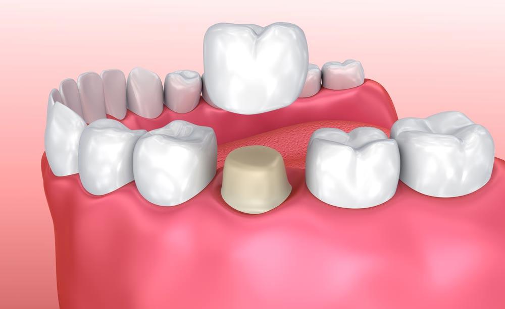 3D Modell zum Einsatz einer Zahnkrone