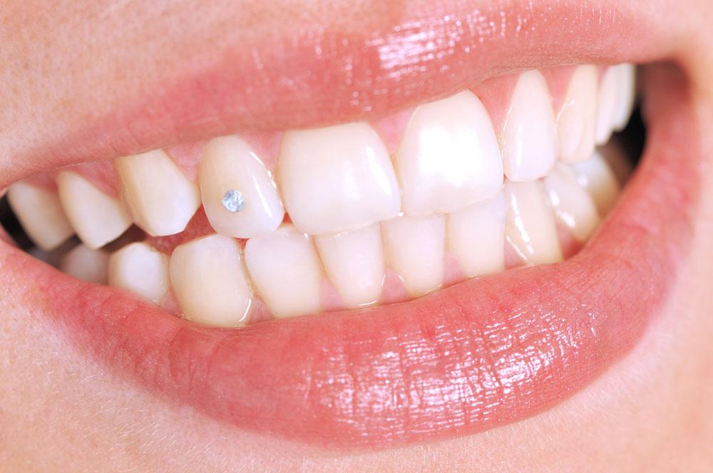 Lächeln mit einem Strassstein auf einem Zahn